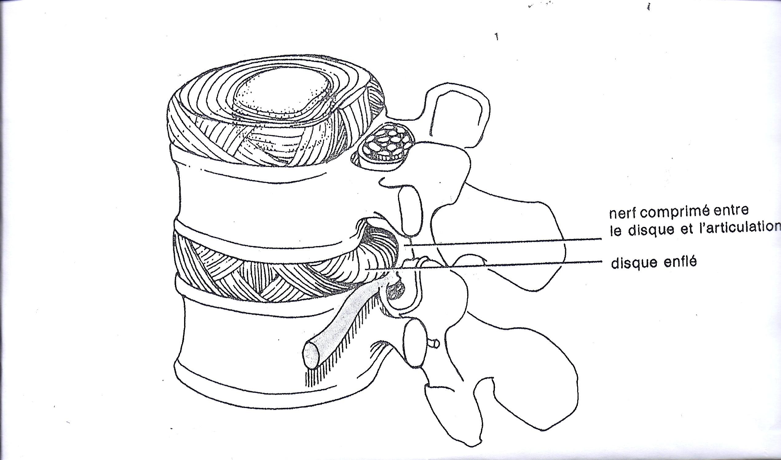 La zone sur lépine dorsale dosteokhondroza